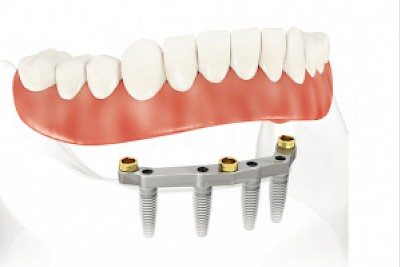All on Four Implants <a href=></a>